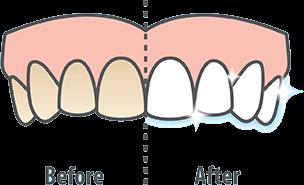 陶瓷牙齒貼片-牙齒美白服務介紹